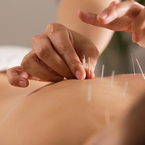 acupuncture haywards heath